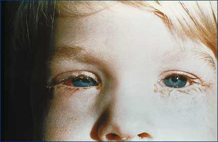 Child with pink eye