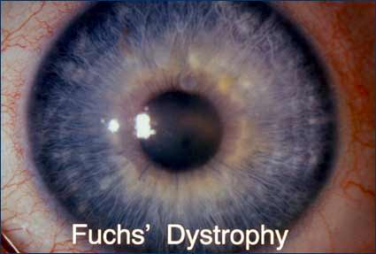 Lancaster eye with Fuch's Dystrophy