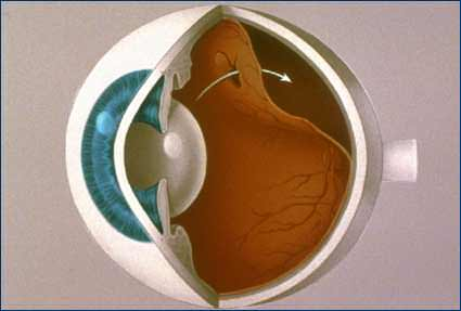 Diagram of detached & torn retina