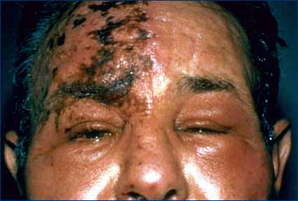 Herpes Zoster (shingles) on the forehead